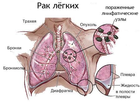 На фото представлено легкое пораженное опухолью