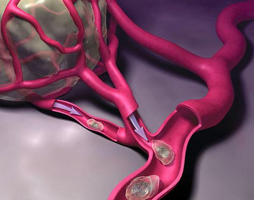 Распространение раковых клеток
