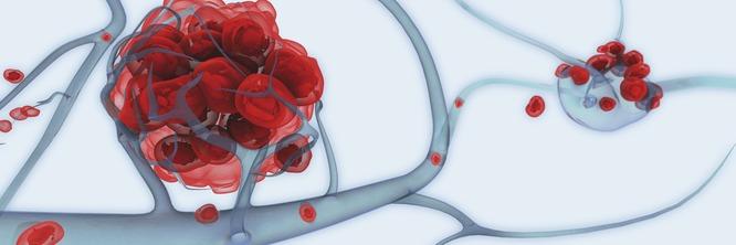 Нередко метастазы в печени оказываются первым клиническим проявлением рака легких