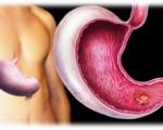 Плоскоклеточный рак желудка