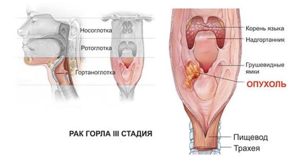 Основные стадии рака горла у мужчин