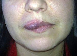Признаки и симптомы рака верхней губы