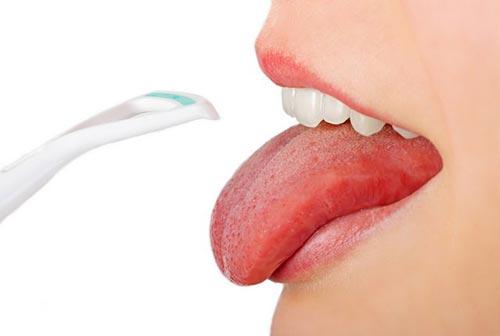 Плоскоклеточный рак языка