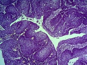 Причины развития опухоли