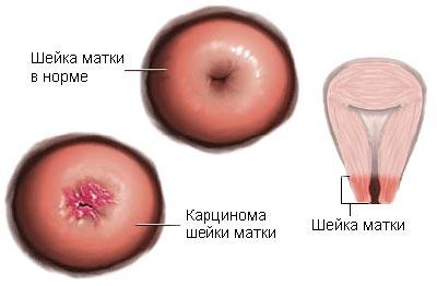 Основные стадии плоскоклеточного рака матки и прогноз