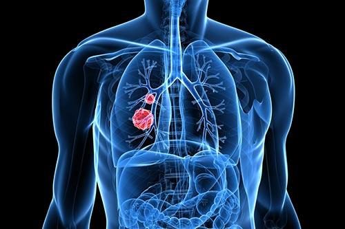 Симптомы плоскоклеточного рака легкого