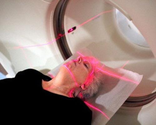 Плоскоклеточный рак: лечение