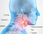 Рак горла — первые симптомы и признаки, лечение на ранних стадиях, фото и прогноз для пациентов