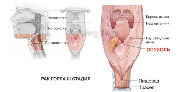 foto raka gorla na 3 stadii