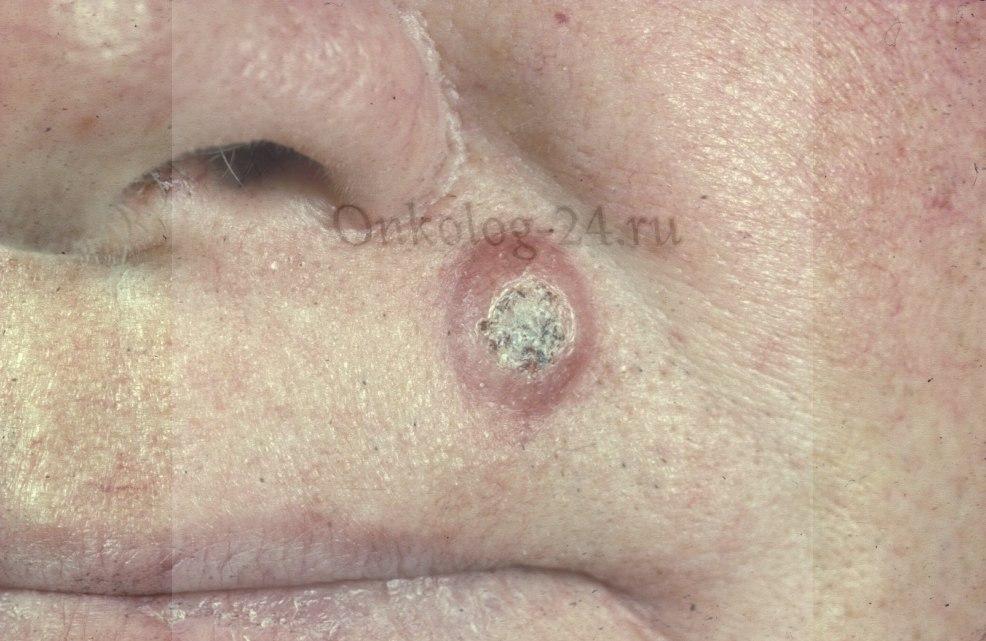 ploskokletochnyy rak na kozhe litsa