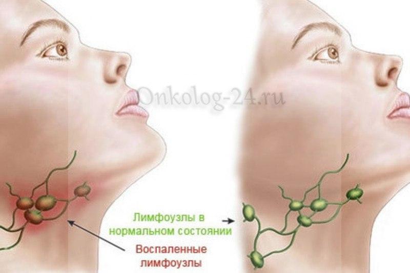 simptomy raka gorla na pozdnikh stadiyakh