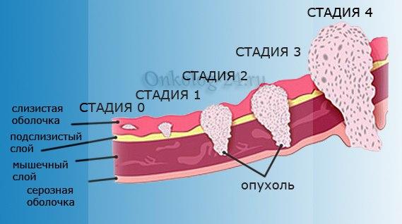 stadii razvitiya raka gorla
