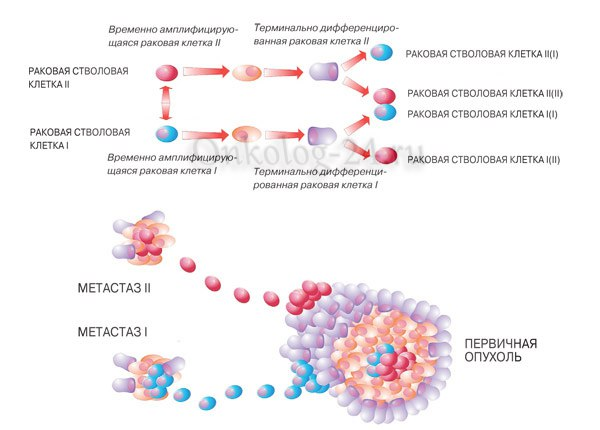 metastazy v limfouzlakh