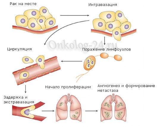porazheniye limfouzlov metastazami