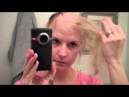 после первой химии выпадают волосы