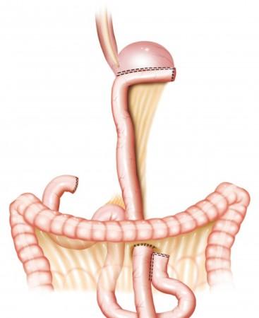 Гастрэктомия: полное удаления желудка