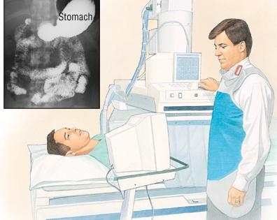 КТ при диагностике рака желудка