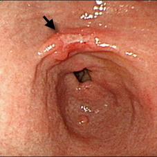 0 стадия рака желудка