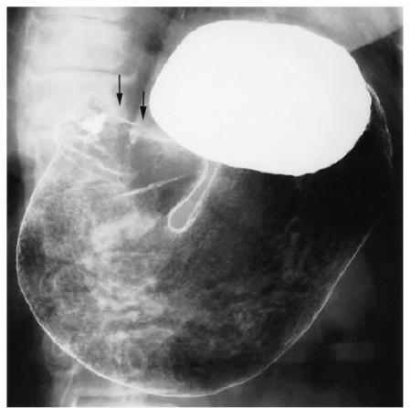 Рентгенография при раке желудка