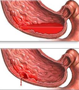 Язва способствующая вызвать кровотечение и переродиться в опухоль