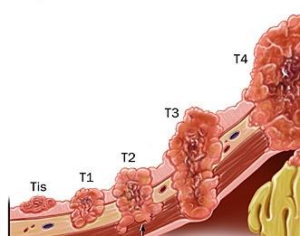 TNM классификация, стадии рака желудка фото