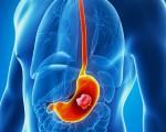 Классификация рака желудка