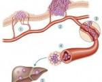 Лимфатические узлы при раке желудка