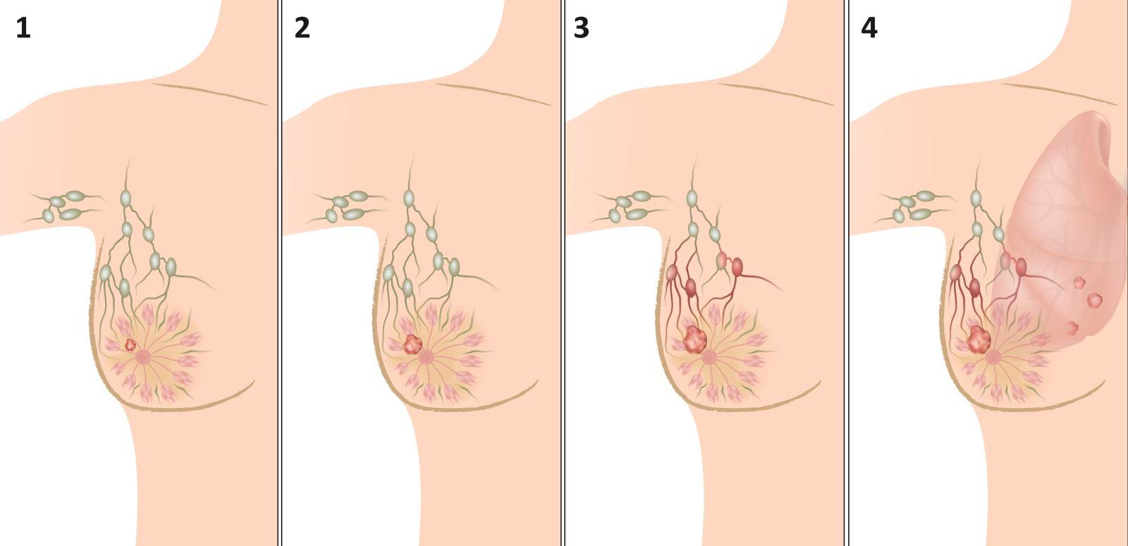 Нашли подозрение на рак молочной железы