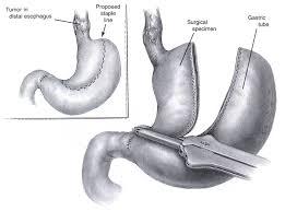 Резекция опухоли в кардио отделе