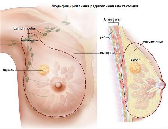 грудь при раке груди фото