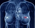 Протоковый рак молочной железы