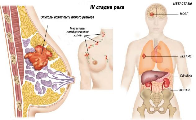 Последствия рака и /или метастазирование
