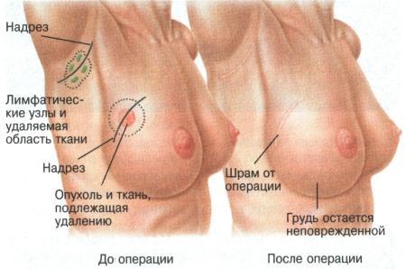 Операция при РМЖ