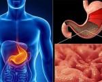 Рак антрального отдела желудка
