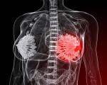 Стадии (степени) рака молочной железы