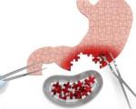 Тотальный рак желудка
