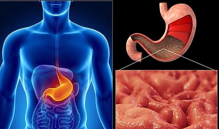Рак антрального отдела желудка: симптом, лечение, прогноз