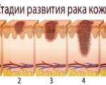 1, 2, 3, 4 стадия рака кожи — симптомы и подходы к лечению в зависимости от стадии