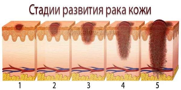 stadii raka kozhi