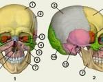 Опухоль костей черепа