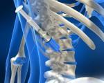 Метастазирование при раке костей