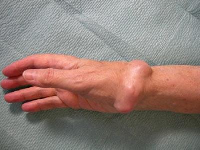 Симптомы и признаки вторичного рака костей