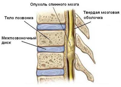Причины рака костей позвоночника