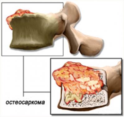 Виды рака кости