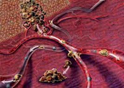 Рак крови: 3 стадия
