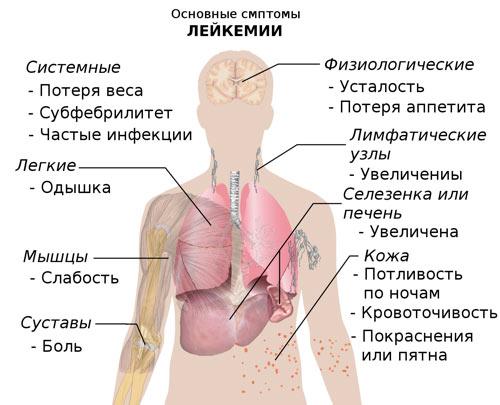 Симптомы и признаки рака крови