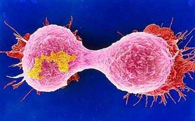 Причины рака крови у детей