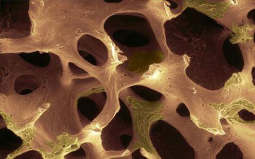 Рак костей таза, бедра и тазобедренной кости