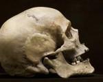 Рак костей черепа