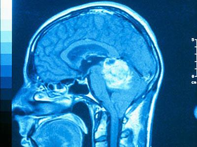Симптомы рака костей черепа